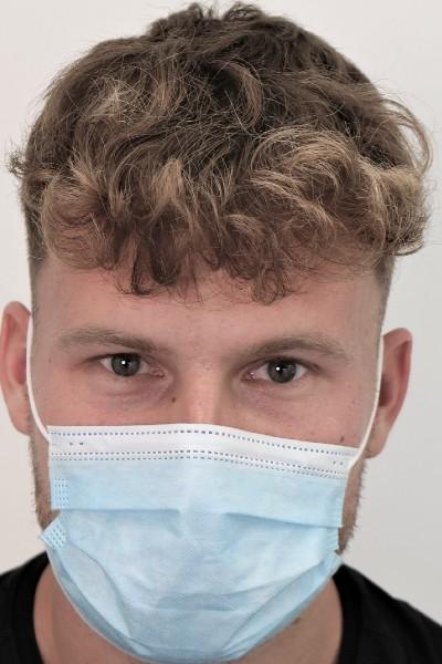 Implantatiegebied 2 weken na behandeling
