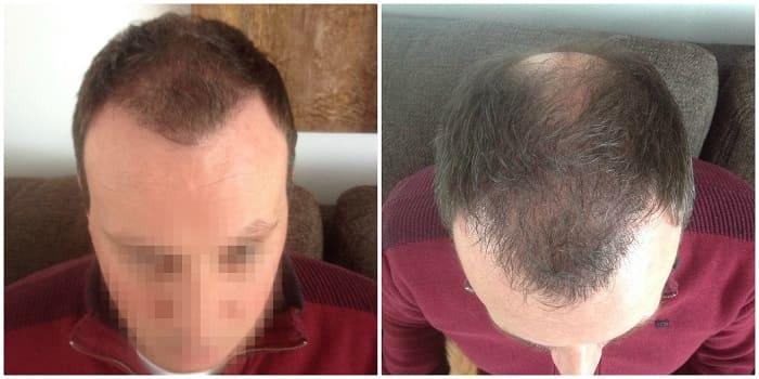 greffe cheveux repousse