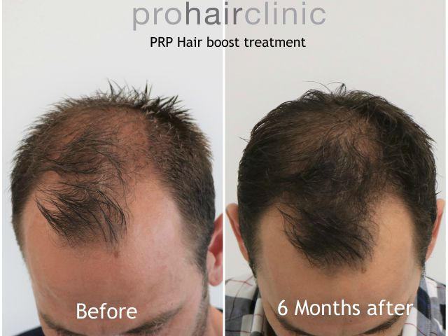 PRP treatment against hair loss, visible results - Prohair Clinic