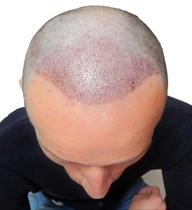 Onmiddellijk na FULL shave FUE