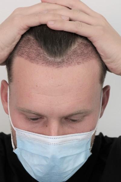 Implantatiegebied net na de behandeling