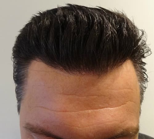 Fue Dense Packing Prohair Clinic