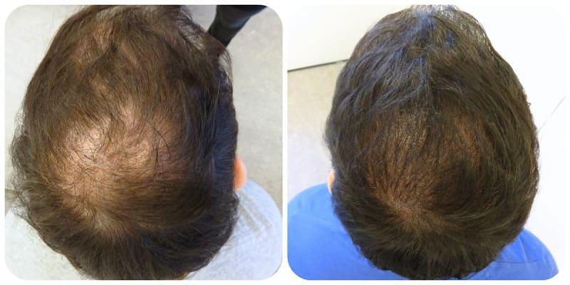 Crown density enhancement using tricopigmentation