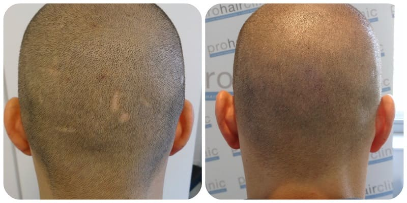 scar improvement using Tricopigmentation